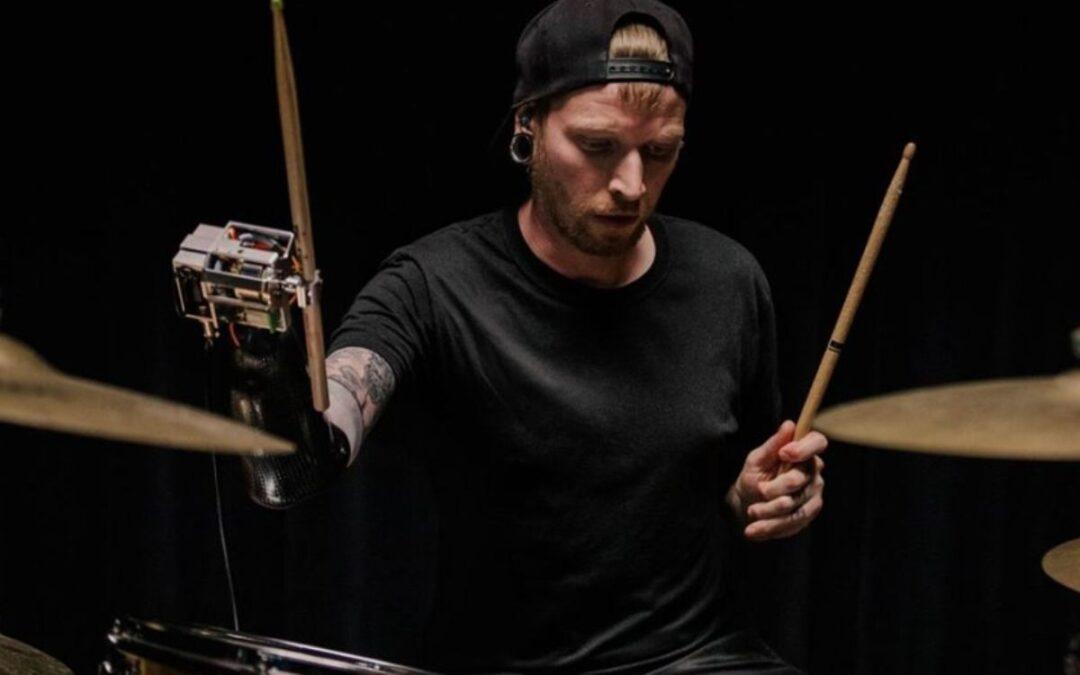 Perkusista wrócił do gry po amputacji kończyny dzięki protezie Google TensorFlow AI